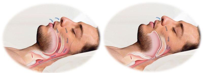 obstructive apnee de somn pierde in greutate)