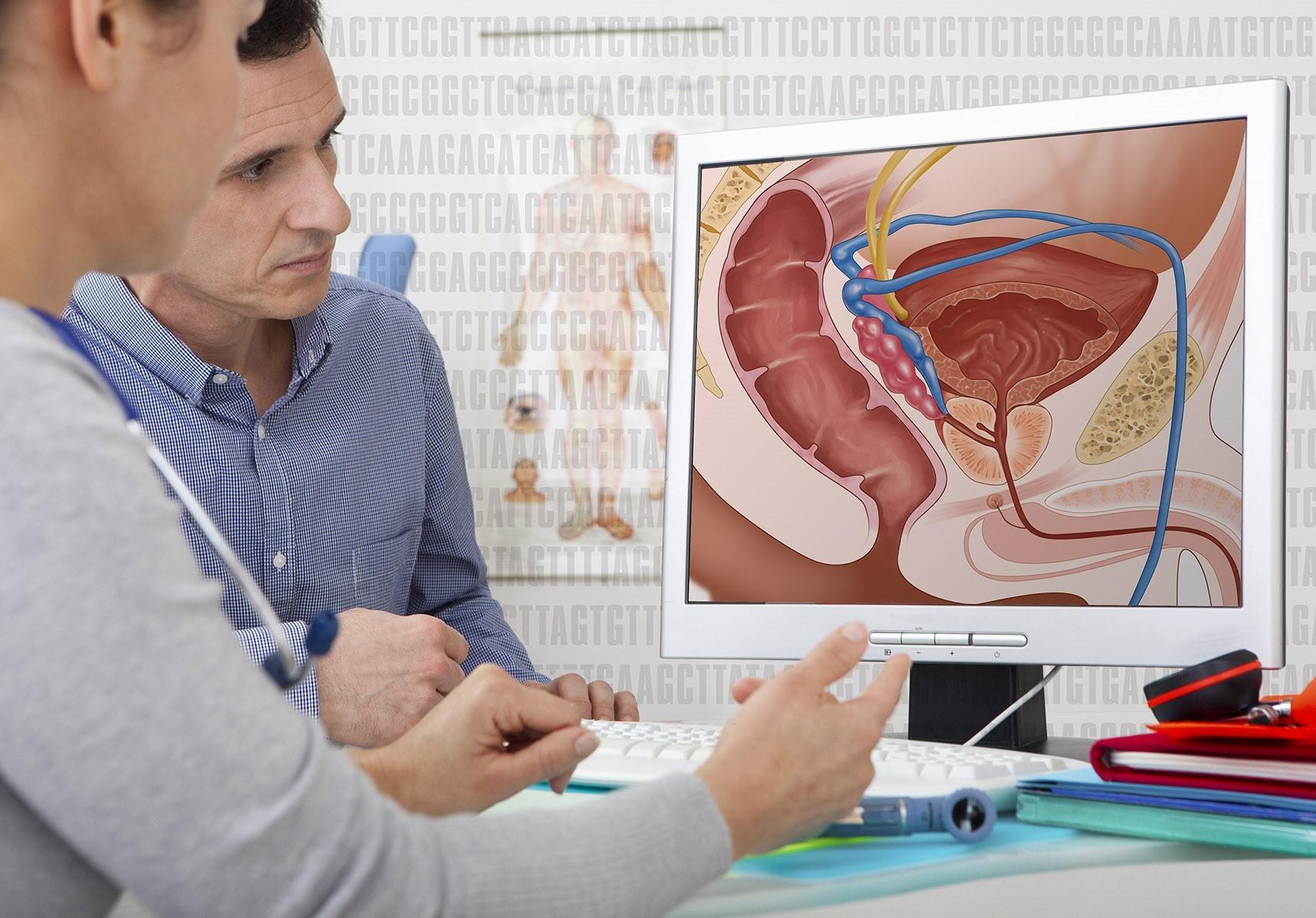 cancer prostata speranta de viata)